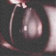 軽度の白内障の写真