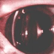 健康な眼の画像